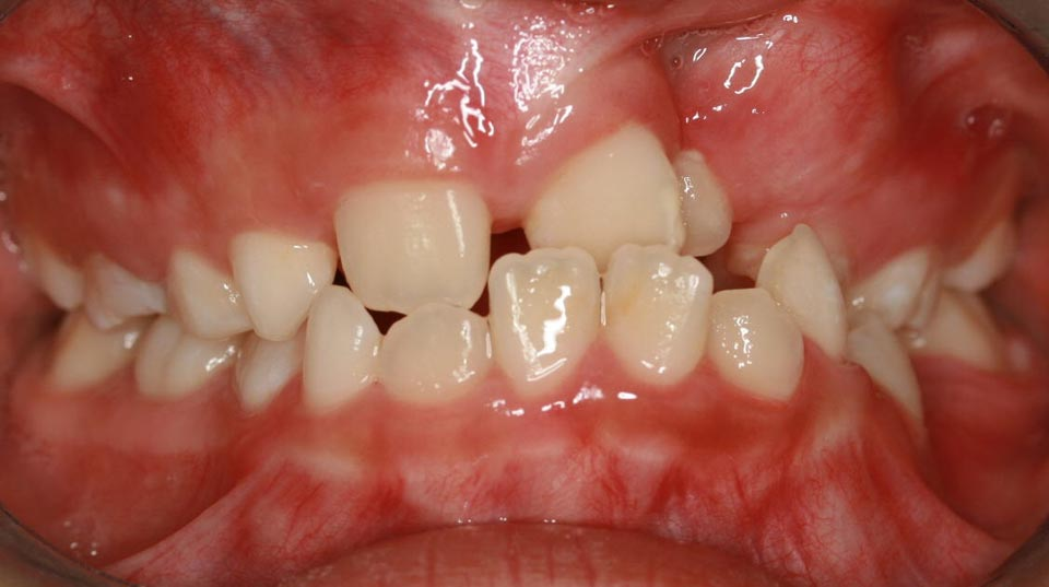 Before image of a smile at Dougherty Orthodontics