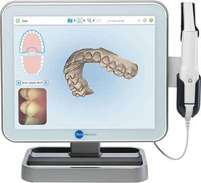 iTero® Element scanner at Dougherty Orthodontics
